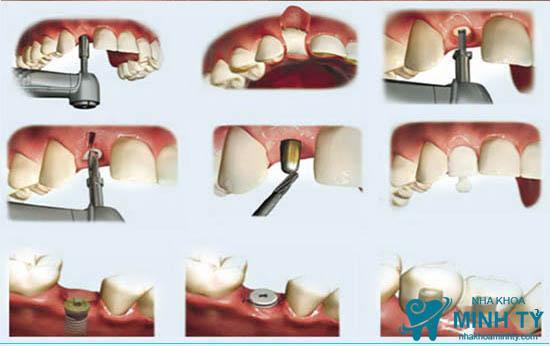 Công nghệ cấy răng Implant