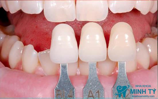 Phục hình răng sứ