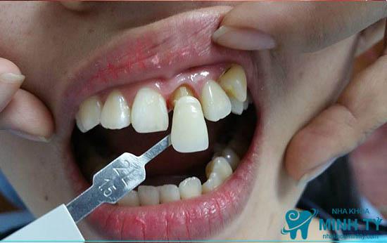Phục hình răng sứ bằng mão răng