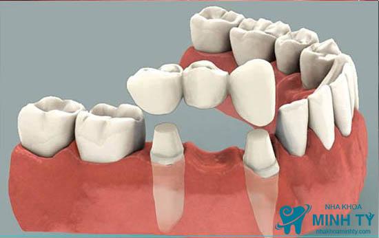 Phục hình răng sứ bằng cầu răng