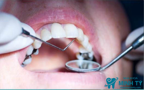 Trám răng thẩm mỹ ở Nha Khoa Minh Tỷ